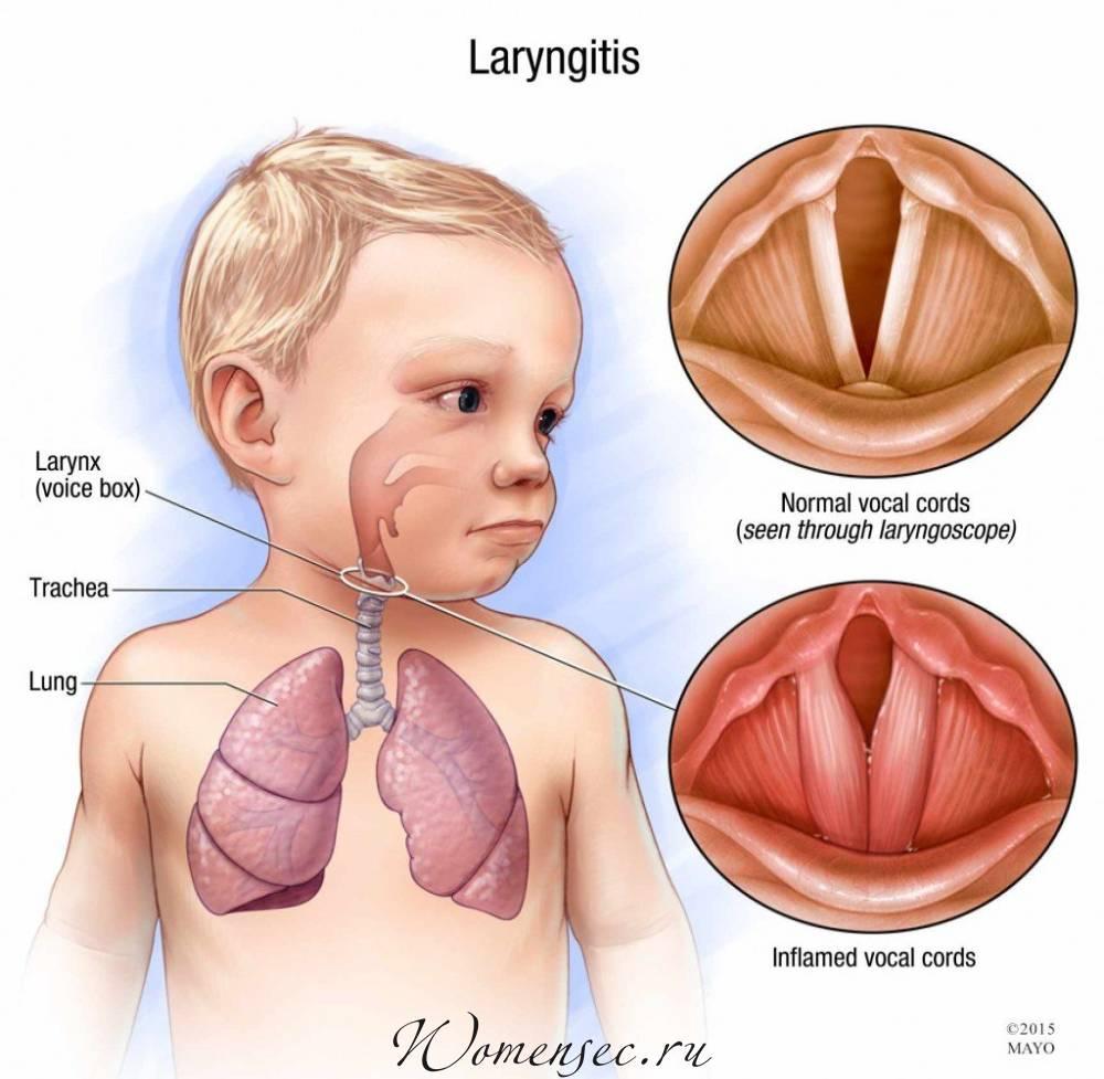 Чем лечить ларингит у ребенка в домашних условиях: лучшие средства